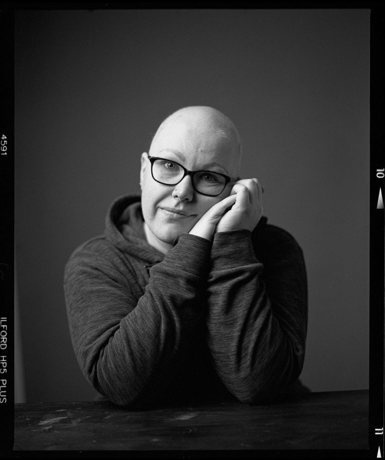 Haarausfall Emotionales Analog Schwarzweissportraitfotografie, Ken Wagner